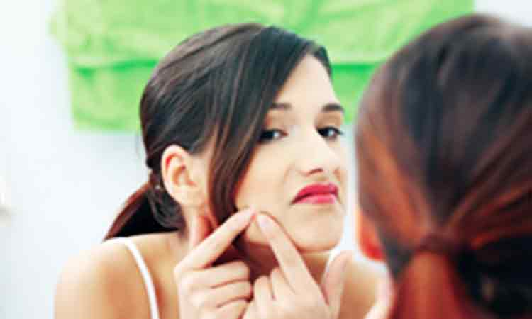 Top five questions by people who suffer from acne