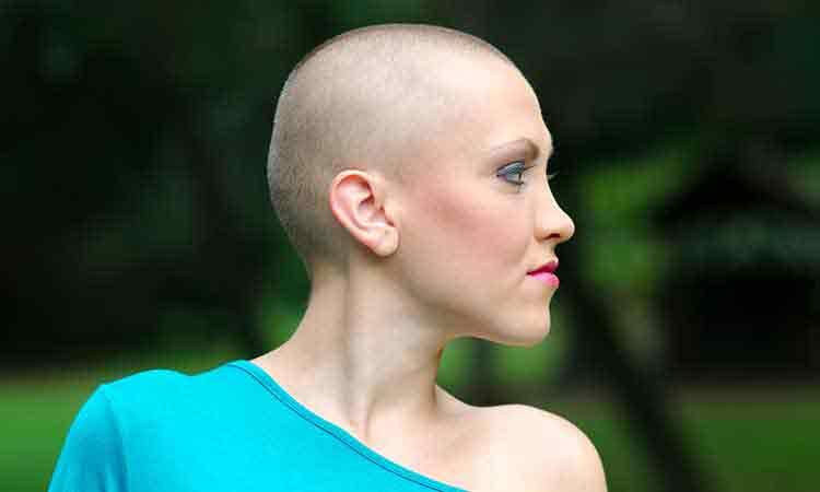 Homeopathy Effectively Treats Alopecia Totalis
