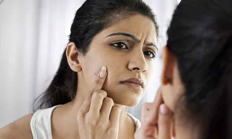 How Does Homeopathy Alleviates Acne?