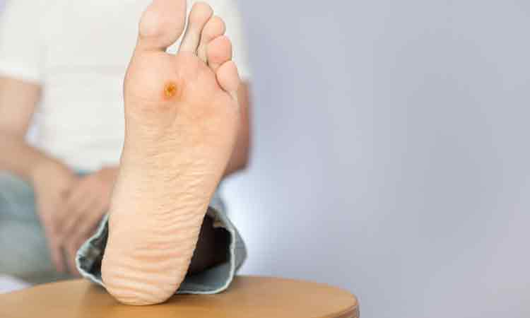 Prevention of Diabetic Foot Ulcer