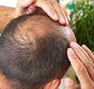 Factors responsible for causing Alopecia Areata