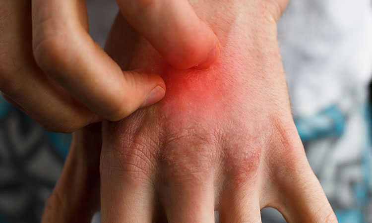 Know The Psoriasis Triggers And Stop The Itch