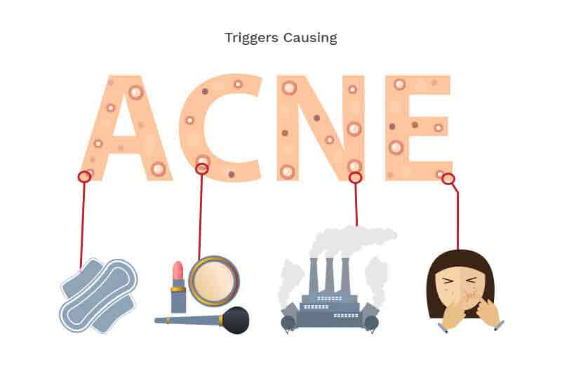 acne-causes