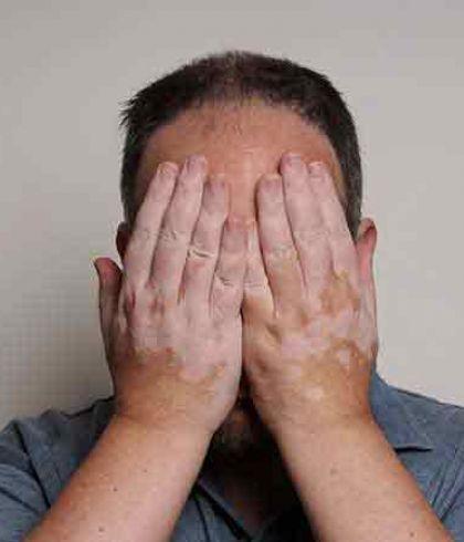 How To Identify White Patches On Skin Or Vitiligo Disease