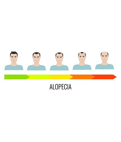 Losing hair due to Alopecia- Treat it with Homeopathy