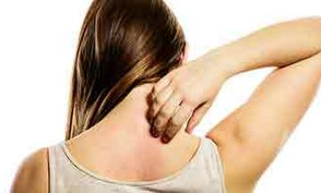 Don't Let Prickly Heat Ruin Your Summer Fun!