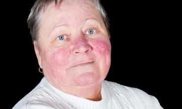 Rosacea is Not Acne……