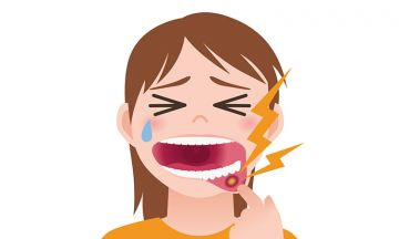 What causes Lichen Planus in the mouth?