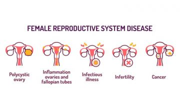 PCOS and Infertility: How are these related?