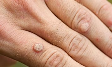 Get rid of warts with homeopathy