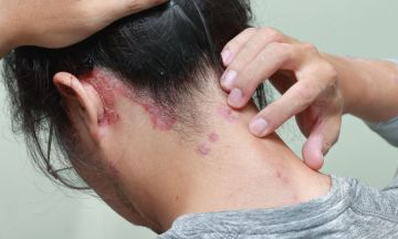 Scalp Psoriasis driving you mad? Try homeopathy