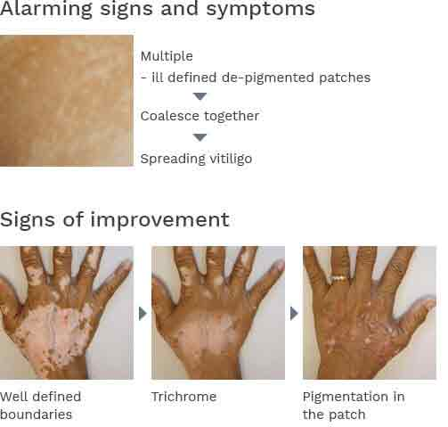 Symptoms Of White Patches On Skin Talk To Skin Specialist