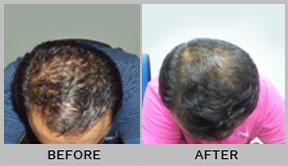 Dr Batra's™ Hair Fall Treatment