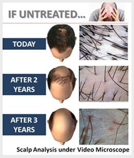 Homeopathy Hair loss Treatment